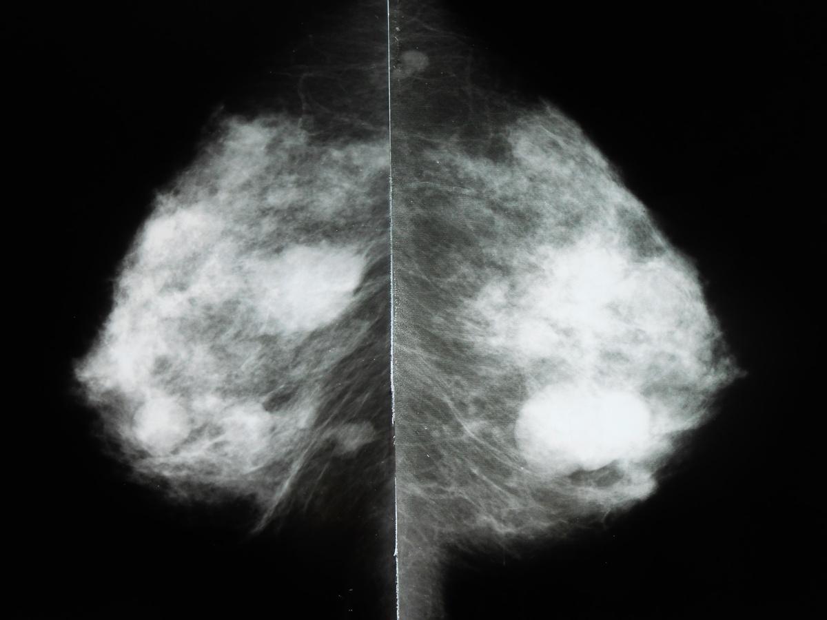 Расшифровка маммографии молочной железы