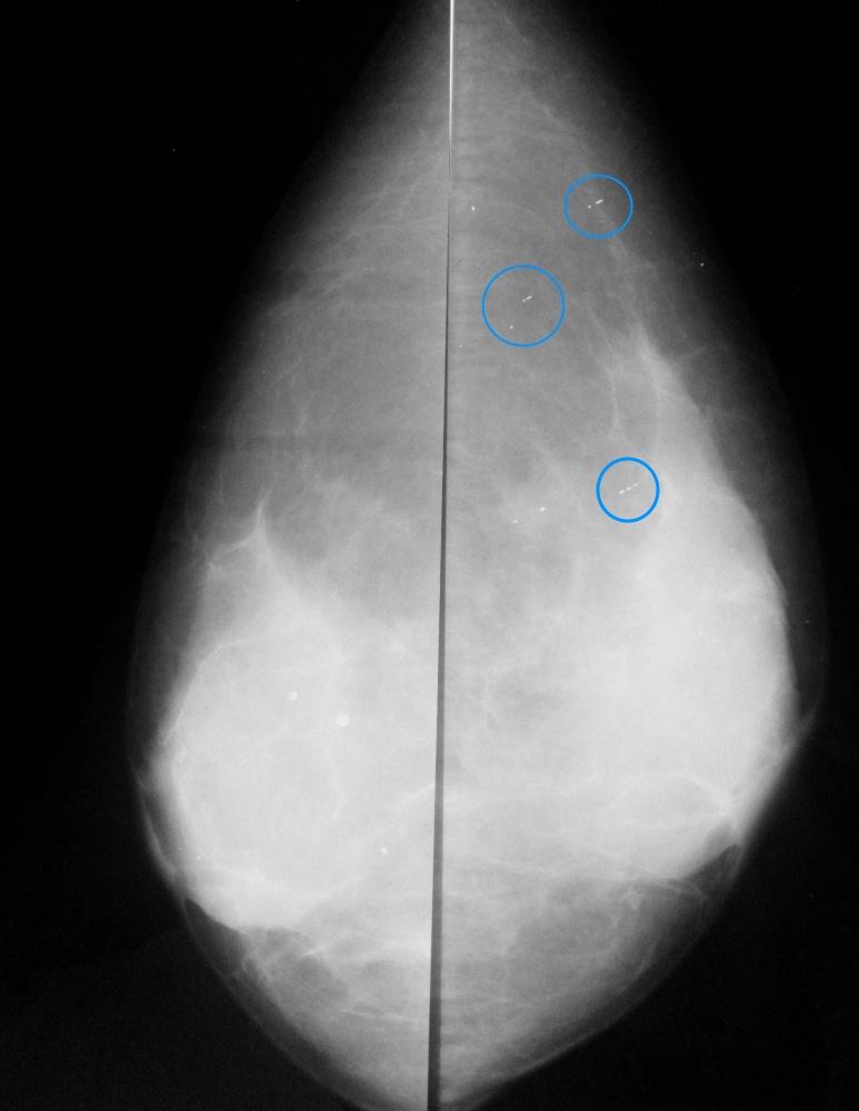 Артефакты (дефекты пленки) на маммограммах, симулирующие линейные кальцинаты