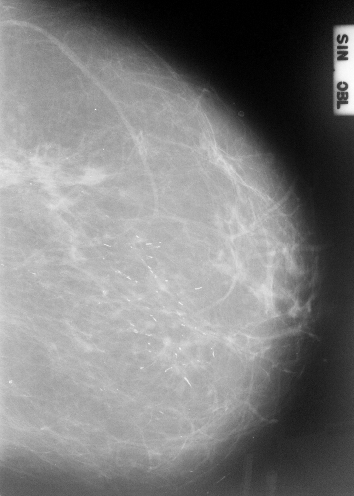 Тонкие кальцинаты линейной формы, кранио-каудальная проекция