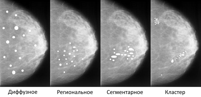 Распределение кальцинатов в молочной железе, схема: диффузное, сегментарное, региональное, кластер, линейное