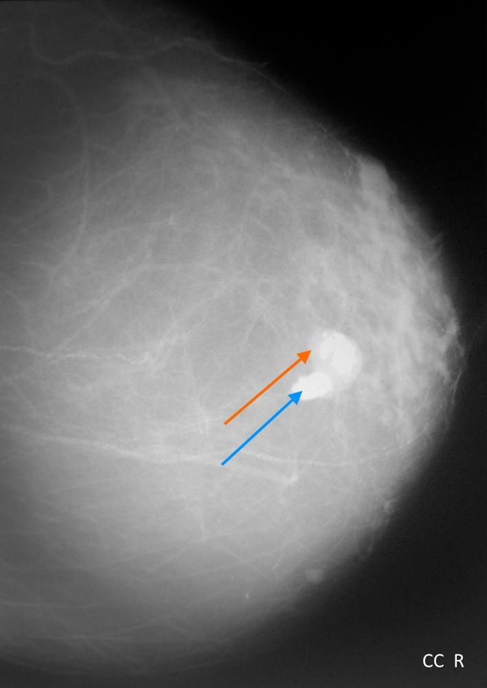 Кальцинаты в молочной железе железе по типу попкорна, кранио-каудальная проекция