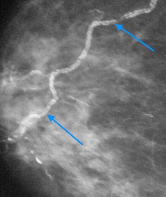 Обызвествления сосудистой стенки в молочной железе