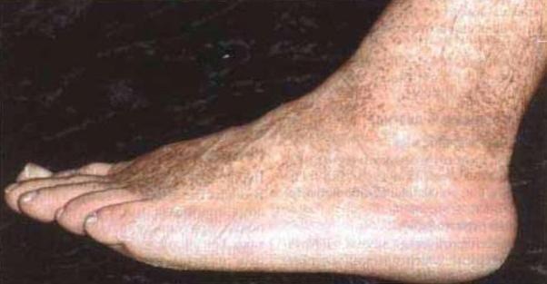 Курс лечения ногтевого грибка на руках