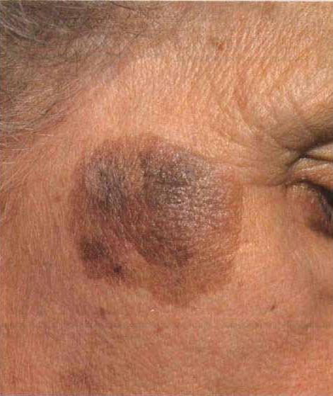 фото доброкачественная опухоль кожи