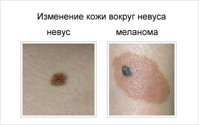 меланома кожи симптомы фото