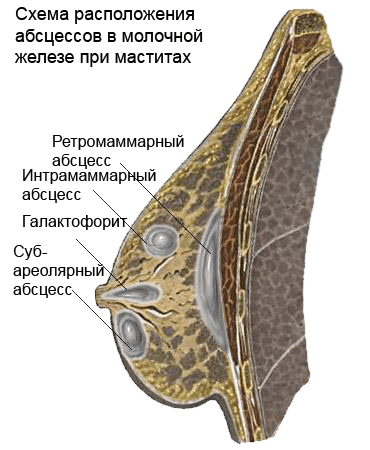 Мастит абсцесс молочной железы