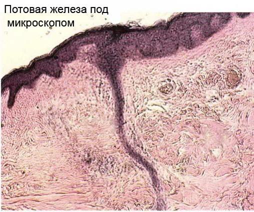 Лечение эпштейн барра москва
